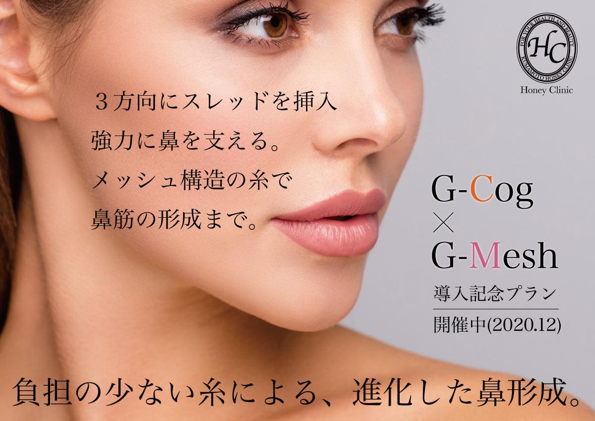 導入記念プラン】鼻形成用スレッド『G-Cog・G-Mesh』【開催中】