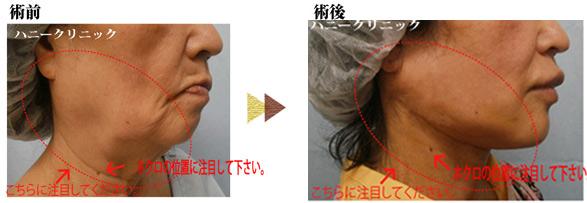 美容外科 熊本
