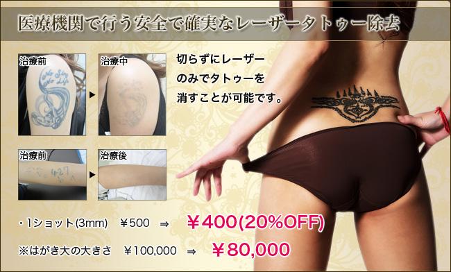 タトゥー除去 熊本
