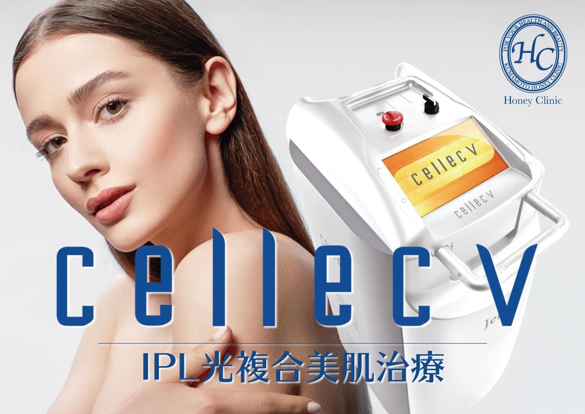 【新導入】IPLによる光複合美肌治療『cellec V(セレック ブイ)』