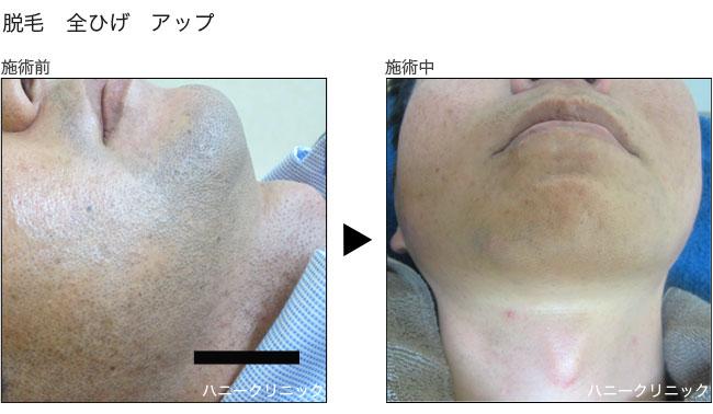 脱毛をするなら熊本の美容外科ハニークリニックへ
