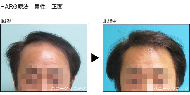 HARG療法なら熊本の美容外科ハニークリニックへ