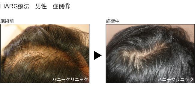 HARG(ハーグ)療法をするなら熊本の美容外科ハニークリニックへ