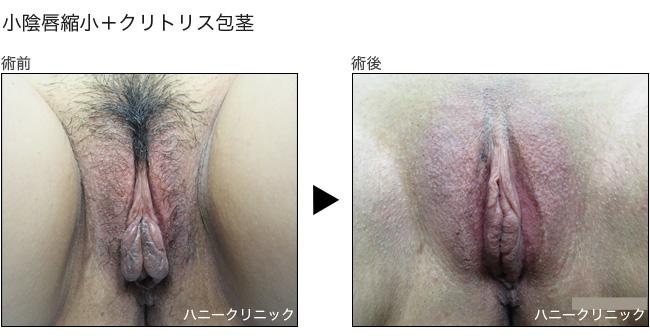 女性器(小陰唇縮小とクリトリス包茎治療)