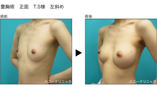 熊本で豊胸手術するなら美容外科ハニークリニックへ