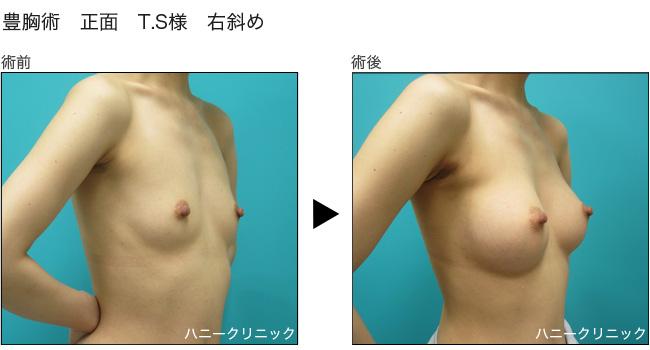 豊胸をするなら熊本の美容外科へ