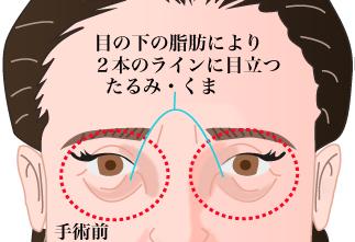 目の下のふくらみをするなら熊本の美容外科へ