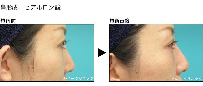 鼻を高くするなら熊本の美容外科へ