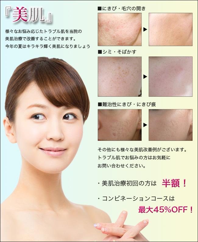 美肌治療 熊本