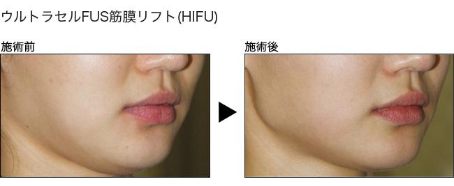 HIFUによる顔の筋膜リフト症例写真